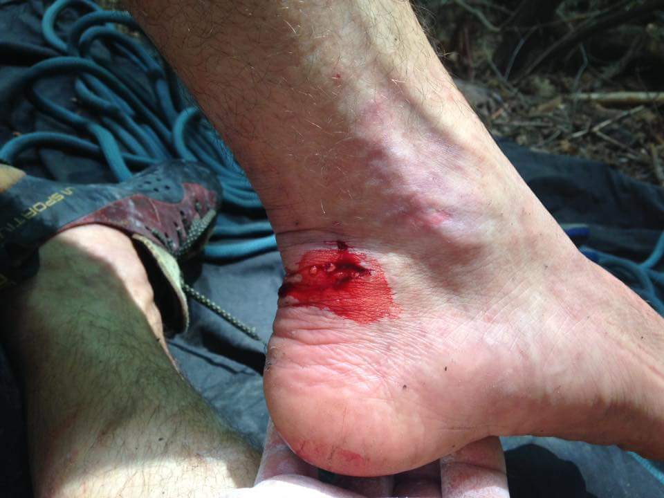 Chat Watkins' heel after snagging a carabiner during a fall at the Meadow River Gorge.