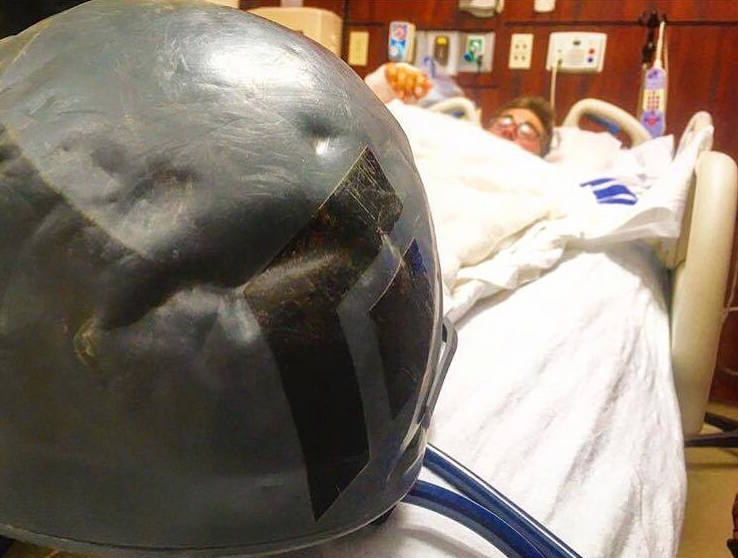 Gorder's helmet, showing the dent incurred in the accident. Gorder credits the helmet with saving his life and preventing a serious head injury.